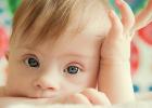 Pri Downovom syndróme má dieťa o jeden chormozóm naviac, teda ich má 47. Aj nadbytočný 21. chormozóm, dieťa sa rodí ako Downov syndróm.