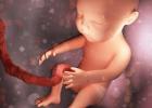 Konizácia krčka maternice: Tehotenstvo po zákroku
