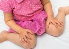 Takto NIE: Tento sed u detí môže spôsobiť problémy