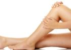 varixy, kŕčové žily, opuch, nohy
