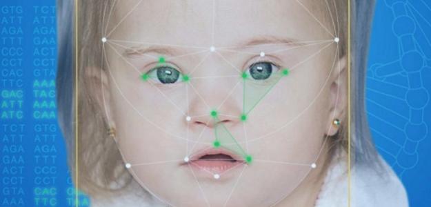 Aplikácia, ktorá pomôže lekárom z tváre pacienta stanoviť zriedkavú chorobu