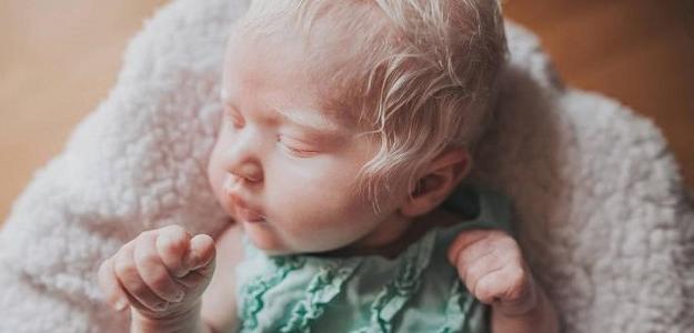 SKUTOČNÝ PRÍBEH: Keď prvýkrát uvidela svoje dieťa, bola v ŠOKU...