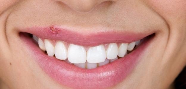 Herpes: Čo spôsobuje nepríjemné pľuzgieriky?