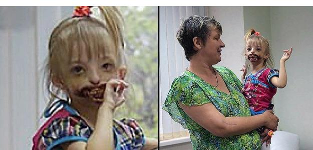znetvorené dievčatko, genetická mutácia, postihnuté dieťa