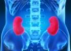 Diabetická nefropatia nebolí, o to viac ničí obličky