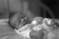Košická Detská fakultná nemocnica bojuje s nedostatkom lôžok pre deti nakazené žltačkou